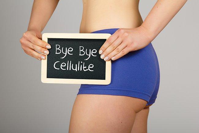 cellulite2